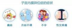 有这些子宫问题,做试管婴儿成功率高吗?