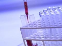 试管婴儿胚胎移植怀孕后需要打黄体酮针吗?胚